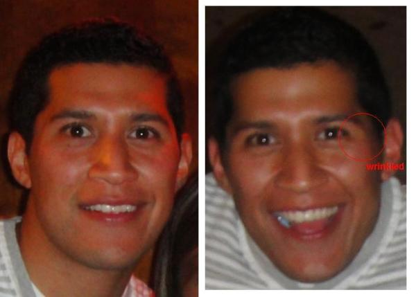 This is a facial comparison of two smiles from the same night. As you can see the one on the right is me smiling in laughter, a genuine emotion.